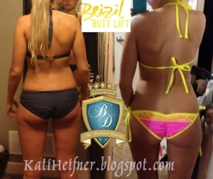 Brazil Butt Lift Results